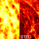 STED Vimentin in PtK2 cells